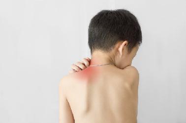 Dermatitis atópica en invierno: ¿cómo tratarla?