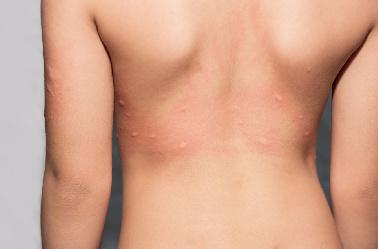 Urgencias dermatológicas en verano: ¿cuándo llevar a los niños?